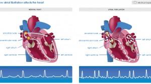 atrial-fibrillation-hamilyon_com_