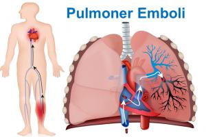 dijital hemsire pulmoner emboli