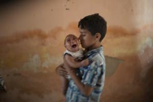 Brazil Zika Birth Defects